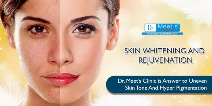 Skin whitening, skin bleaching, and skin lightening are a technique which uses chemical substances in order to lighten skin tone or give an even skin complexion by reducing the concentration of melanin. Make an appointment at Dr. Meet's Clinic, who carried different types of #skin lightening treatment such as peeling, detan facials, anti pigmentation treatments, laser treatment and so on.