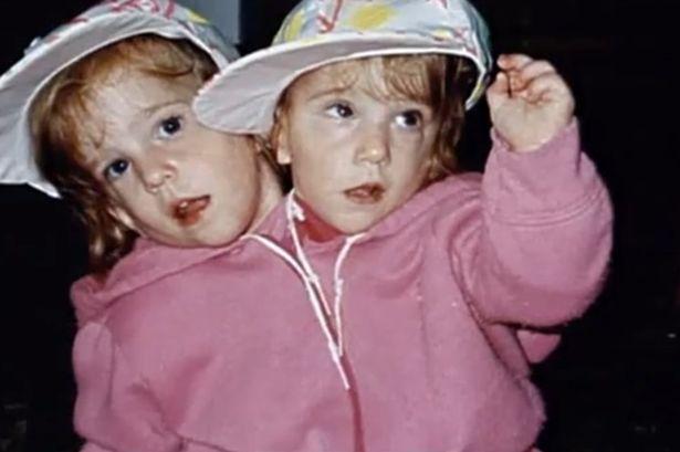 A história das gêmeas Abigail e Brittany Hensel   Já pensou como seria nascer grudado no mesmo corpo que outra pessoa? Pois é justamente o que acontece com os gêmeos siameses (ou xifópagos). Uma parte do corpo de um é grudada no outro. Entre nossas pesquisas, achamos as gêmeas americanas Abigail Loraine Hensel e Brittany Lee Hensel. As duas nasceram grudadas pelo pescoço. Veja só a história delas... http://curiosocia.blogspot.com.br/2013/03/a-historia-das-gemeas-abigail-e.html