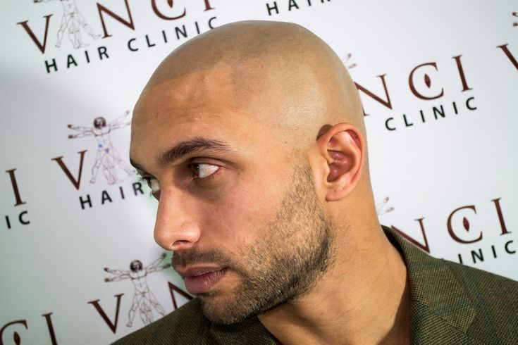 Scalp MicroPigmentation Results - Before And After