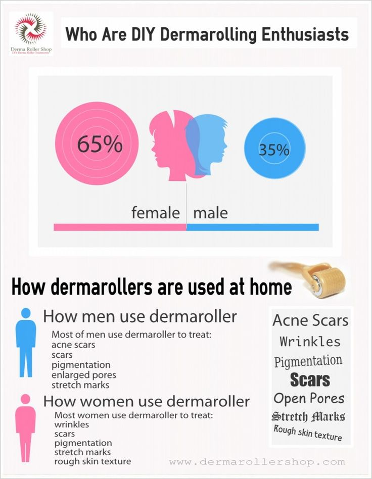 Who Are At Home Dermaroller Treatments Enthusiasts? Why men use dermarollers? Why women use dermarollers? Why you should be using the dermaroller? Why you should have realistic hopes for dermarolling results? How can you support your skin renewal process after dermarolling? Who will benefit most from the dermarolling? Should you try at home dermaroller?