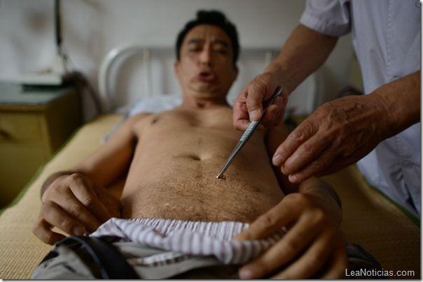 Chinos se someten a picaduras de abejas para tratar enfermedades terminales (Fotos) - http://www.leanoticias.com/2013/08/15/chinos-se-someten-a-picaduras-de-abejas-para-tratar-enfermedades-terminales-fotos/