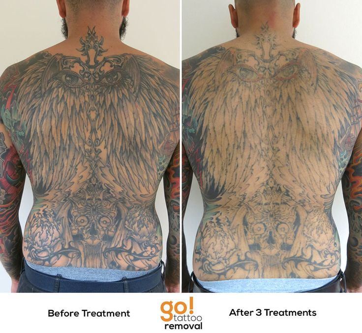 Laser Tattoo Removal Results Half Sleeve ~ in home tattoo removal