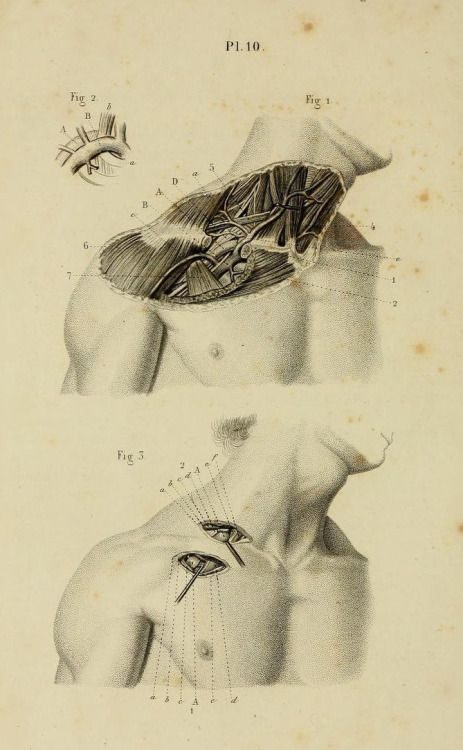 "nemfrog:  Plate 10. ""Ligature of the axillary and subclavian arteries."" _Illustrated manual of operative surgery and surgical anatomy_ 1855."