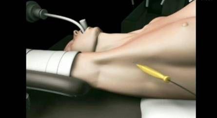 Robotik Tiroidektomi - Robot tarafından Tiroid ameliyatı