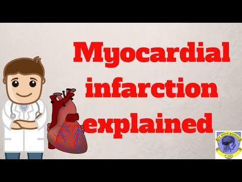 INFARCTUS DU MYOCARDE | 65