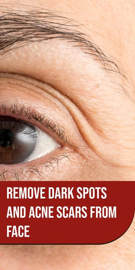 Get rid of acne scars and dark spots once and for …
