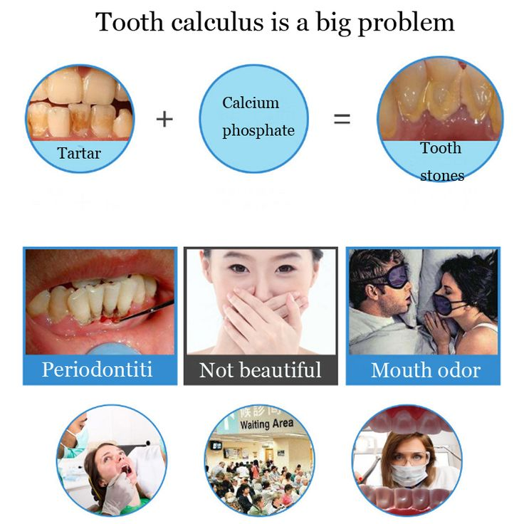 How to easily remove dental plaque in 2020 dental