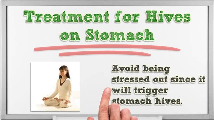 Hives on Stomach - Hives on Stomach and Back - Hives on Stomach Pictures | Hives on Stomach Only