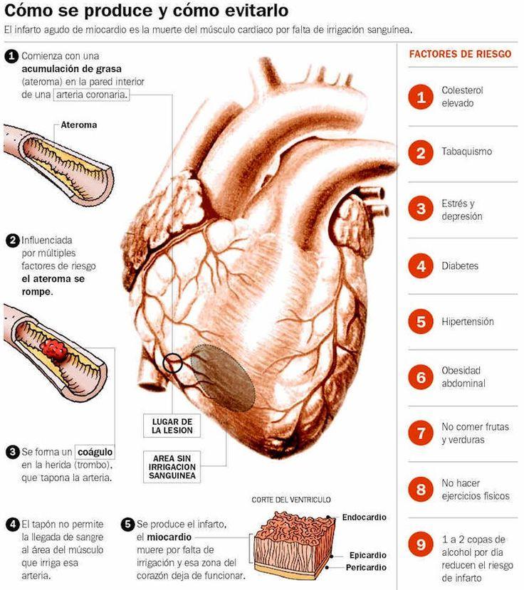Cómo actuar tras un infarto. Cómo se produce y cómo evitarlo.