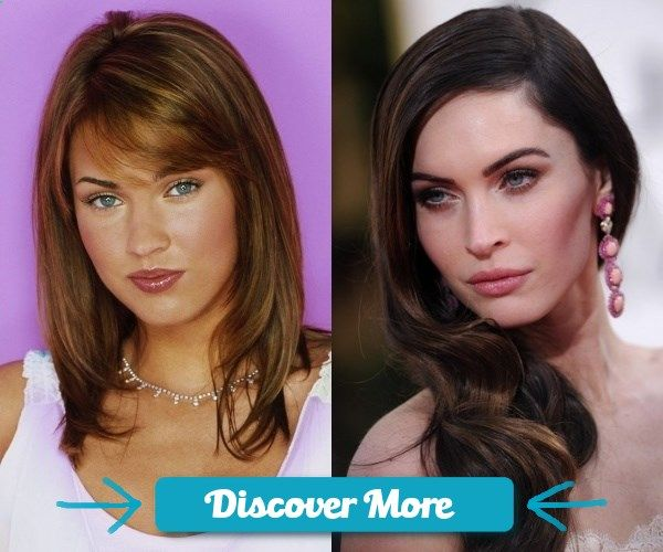 Megan Fox Plastic Surgery Before and After Picture #fitnessbeforeandafterpictures, #weightlossbeforeandafterpictures, #beforeandafterweightlosspictures, #fitnessbeforeandafterpics, #weightlossbeforeandafterpics, #beforeandafterweightlosspics, #fitnessbeforeandafter, #weightlossbeforeandafter, #beforeandafterweightloss