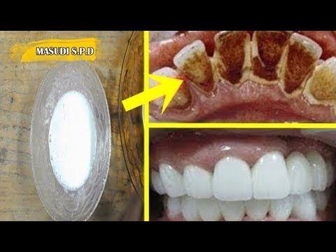 Hanya Dalam 2 Menit Karang Gigi Musnah Dan Gigi Putih Bersinar Youtube Pemutih Gigi Alami Resep Langsing Kesehatan Gigi