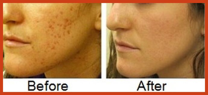 Acne Scar Removal - Laser Skin Resurfacing to Make You Look Younger -- To view further for this article, visit the image link. #naturalsoaps