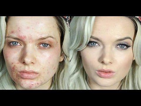 Em Ford'un Mide bulandırıcı cildi ve Sonrası ! » Sağlık ♥ Hastalık #make-up #makyaj #cilt #rimel #ruj