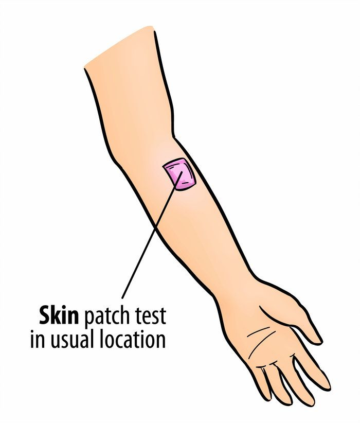 A Blog Post To Educate On The Importance Of Conducting Skin Patch Tests Before Using Essential Oils And Other Health In Skin Patches First Blog Post Blog Posts