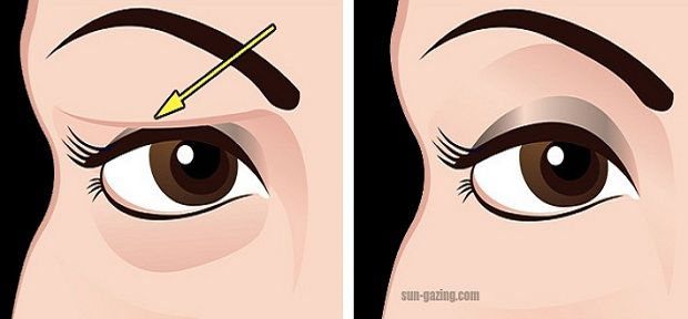 Drooping or sagging eyelids can affect both your appearance and vision. The droopy skin makes people look tired and constantly worn out no matter how well-rested they may be. It causes them to appear older and the frustration doesn't end there because it also makes it a lot harder to apply makeup. The condition is…