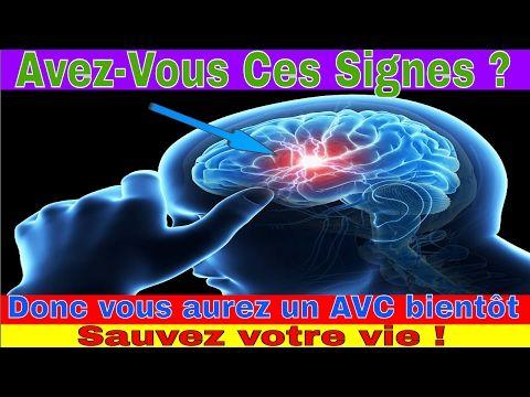 Vous avez ces signes Donc vous aurez un AVC bientot, Sauvez vos vies - YouTube