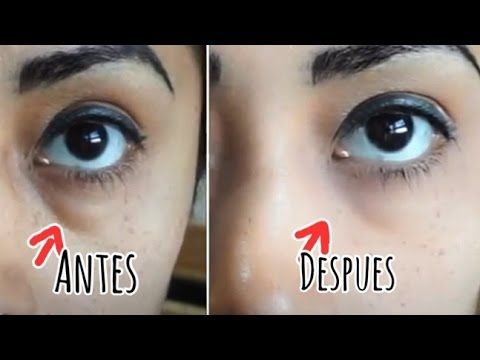 AMAZING! in a 5 minutes! Removes eye bags Dr. Lola