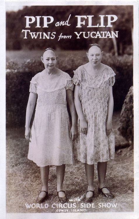 """Elvira and Jennie Lee Snow, microcephalic twins from Georgia and actors (without their consent) in the movie """"Freaks."""""""