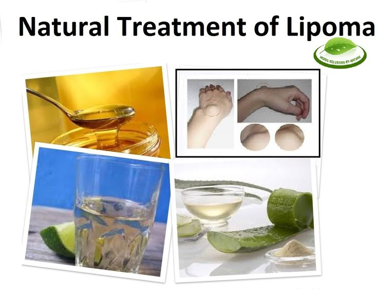 Natural Treatment Of Lipoma With Home Remedies Lipoma