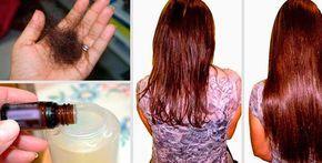 """Ads La caída del cabello es algo cada vez más frecuente afectando tanto mujeres como a hombres por distintos factores desde genéticos hasta problemas de estrés, siendo síntoma de diferentes problemas o enfermedades. Aunque algunas personas relacionan la caída del cabello con la edad, esto no es del todo cierto. Por eso, es importante tener … Continue reading """"Dos gotas de esto a tu champú harán que tu cabello crezca y no se caiga nunca más… Es Genial."""""""