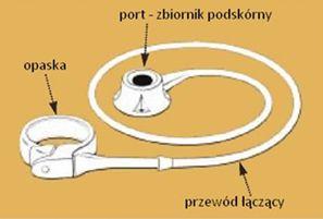 Opaska żołądkowa - części składowe: opaska, przewód i port wszczepiany pod skórę.