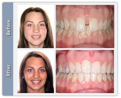 Braces Before and After Gap | A little bit of everything ...