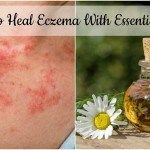 How to Heal Eczema With Essential Oils