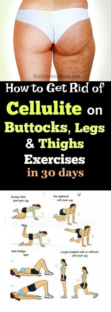 7 Best Exercises to Get rid of Cellulite on Buttocks and Thighs Fast