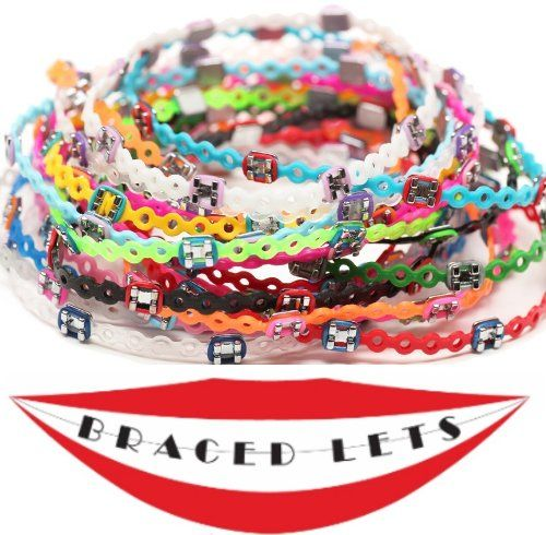 Bracelets that look like Braces - New... $3.99 #topseller.  So, did a practice go out of business and this is what they did with the extra a-chains and brackets?