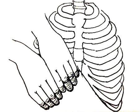 The Slipping Rib Syndrome: An Overlooked Cause of Abdominal Pain