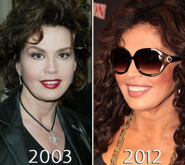 Marie Osmond botox injections photo