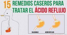Usted no necesita un medicamento para tratar los problemas gastrointestinales como el reflujo ácido y las ulceras — existen 15 remedios naturales.