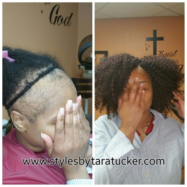 Crochet braids on thinning and balding hair  my work