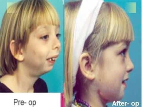 Scientific Dental Implant Treatment