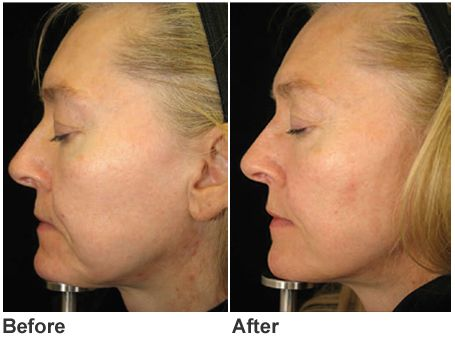 75 Best Perfect Body Laser Amp Aesthetics Images On