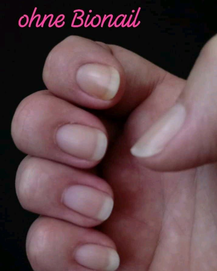 💅 Bionail 💅  jetaso.eu/ #bionail #nagelreparatur #naturnails #nagelpflege
