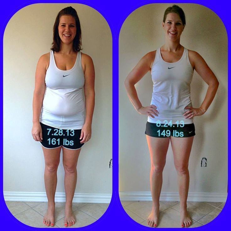 Bupropion Weight Loss Or Gain