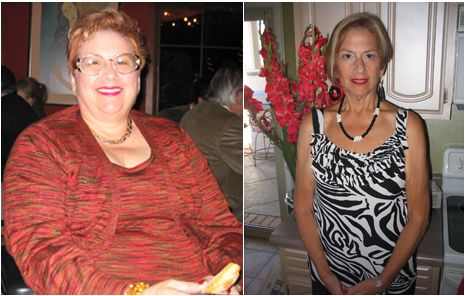 extreme weight loss  before  after weight loss photos
