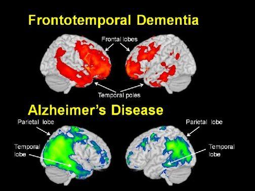 Frontotemporal Dementia (FTD) vs Alzheimer's Disease