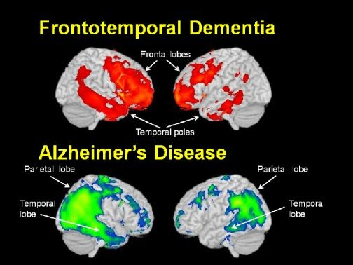 12 Best Images About Vascular Dementia On Pinterest