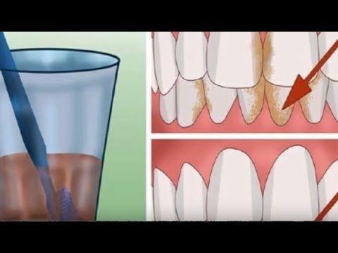 REMOVA o Tártaro, Elimine a Placa Bacteriana e as Bactérias que Destroi sua Boca com Oleo de coco - YouTube