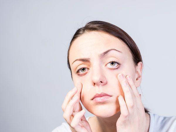 Besorgt über Augenlid Pickel? Behandeln Sie sie effektiv mit diesen Hausmitteln #SkinCareForAcneProneSkin