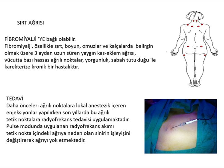 Sırt Ağrısı Fibromiyalji