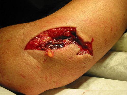 Disgusting cut. Ugh   Makeup Morgue: Wounds   Pinterest