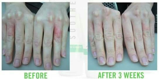 Great results for a very itchy annoying skin condition! gwendab2@gmail.com