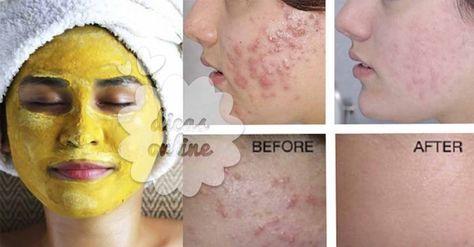 Não Perca!l Problemas como rosácea, espinhas e olheiras têm solução natural. Saiba qual aqui! - # #acne #olheiras #rosácea