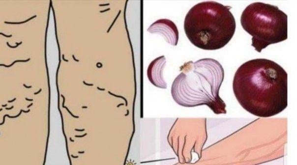 metode împotriva varicosei