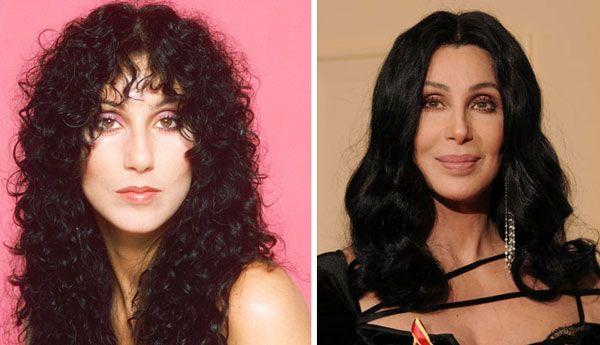 Cher Plastic surgery                                                       …