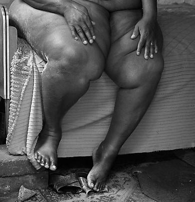 David Goldblatt, Particulars Woman on her bed, Yeoville, Johannesburg, 1983