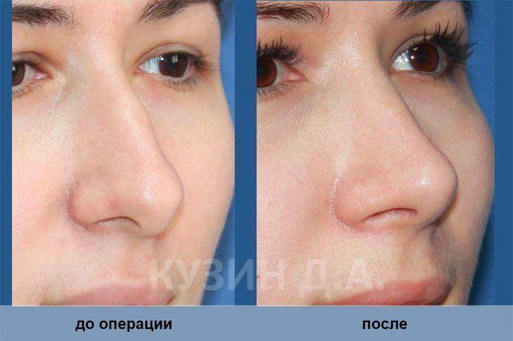"""Результат операции """"Ринопластика"""", проведенной Кузиным Д.А."""
